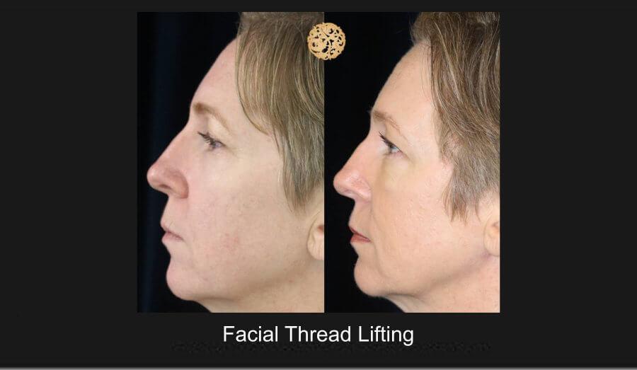 facial-thread-lifting-1d