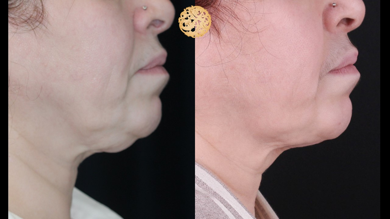 Neck Liposuction Gallery