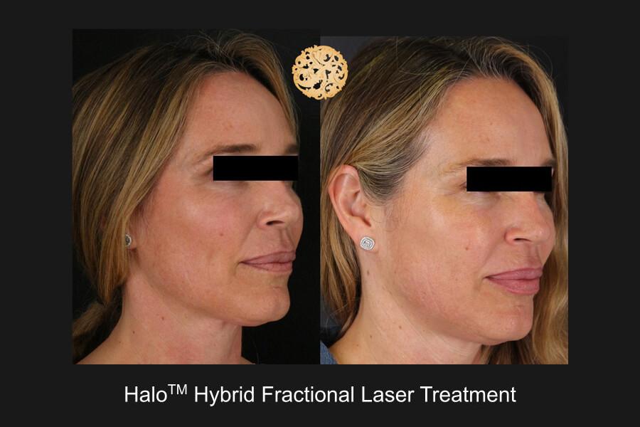 halo_hybrid_slide2