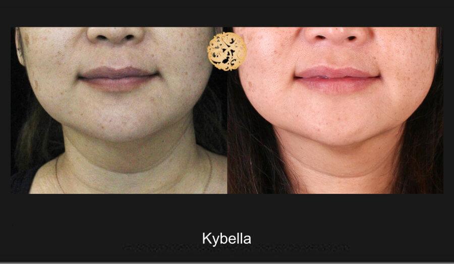 kybella-1a