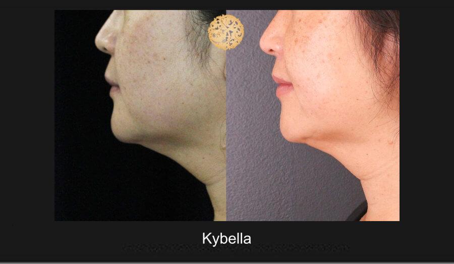 kybella-1d