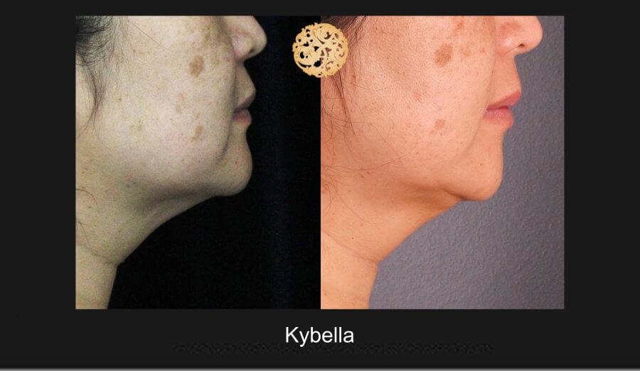 kybella-1e