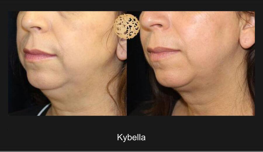 kybella-a