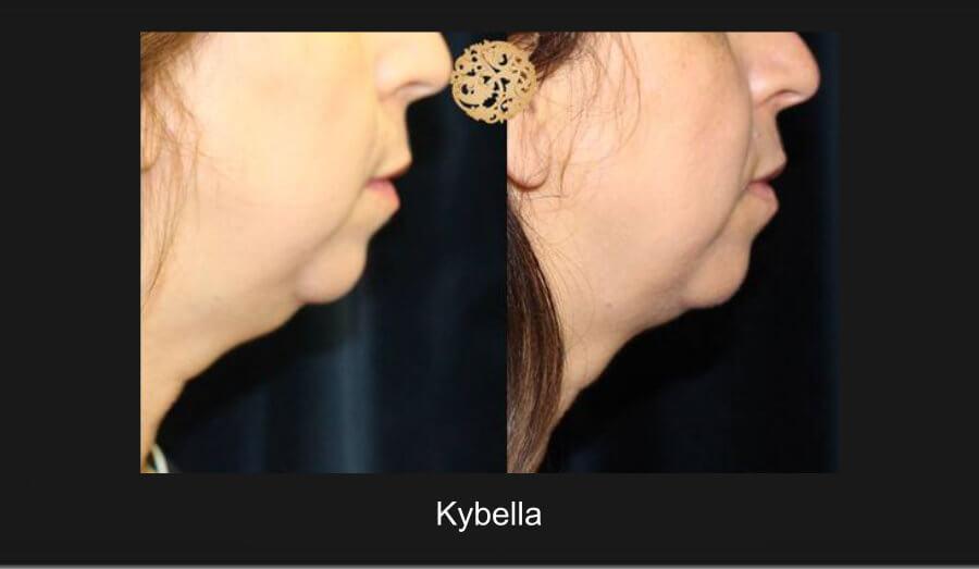 kybella-c