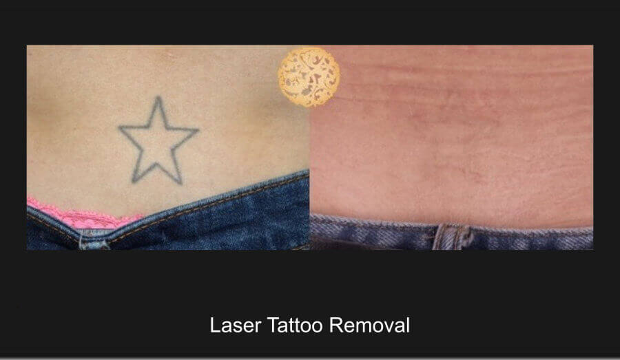 laster_removal_3