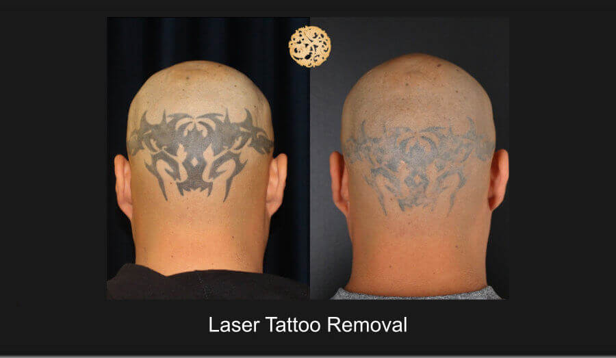 Laser Tattoo Removal Gallery