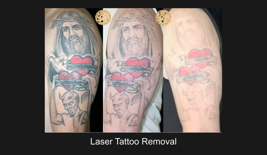 laster_removal_7