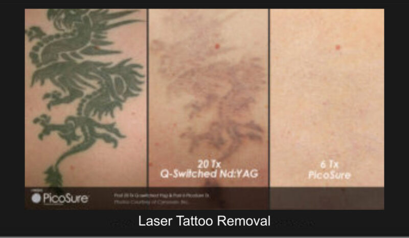 laster_removal_9