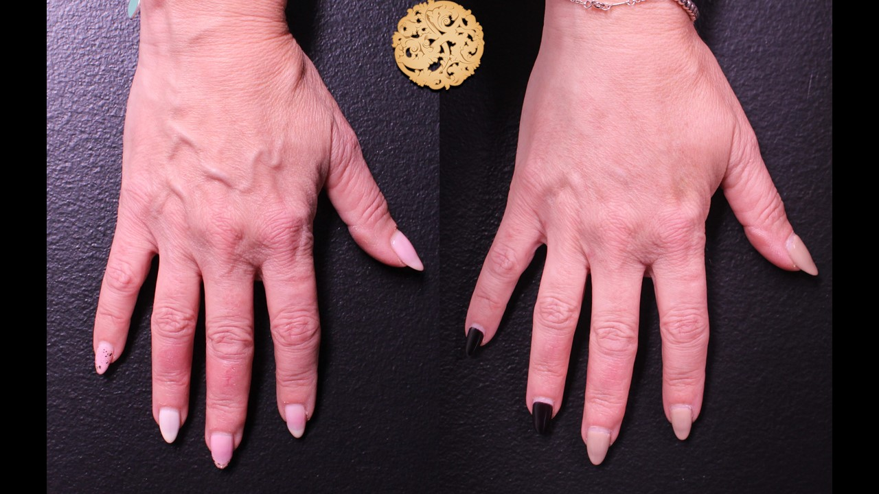 Hand Rejuvenation Gallery