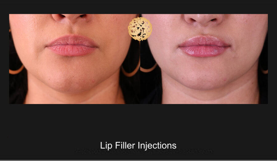 Lip Augmentation Gallery