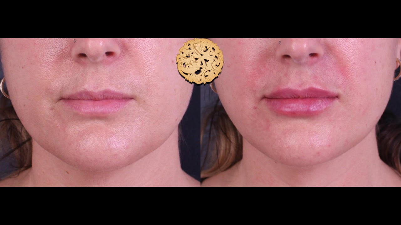 Lip Augmentation Gallery