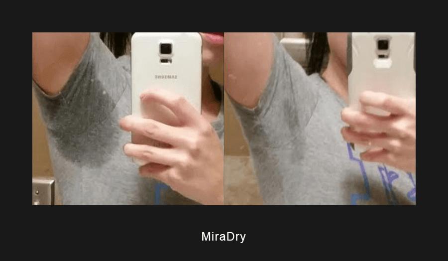 miradry-ba-1