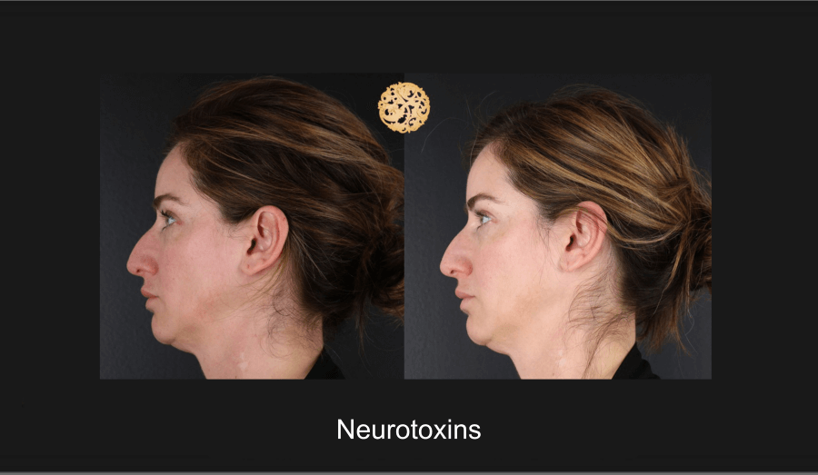 neurotoxins-1e