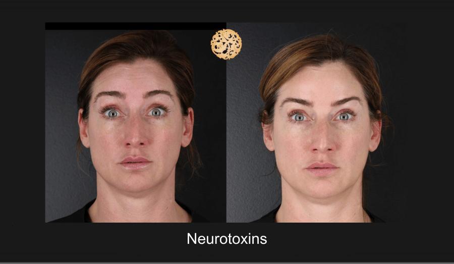 neurotoxins-1g