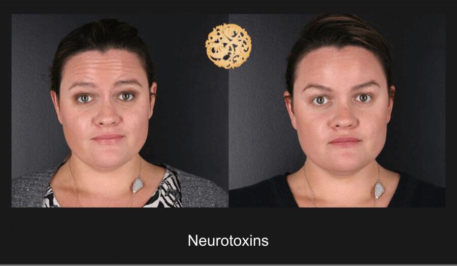 Neurotoxins Gallery
