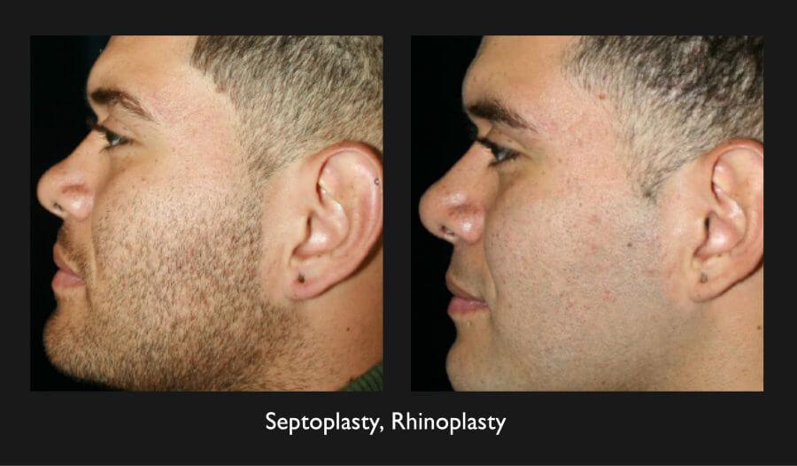 Rhinoplasty and Septoplasty Gallery