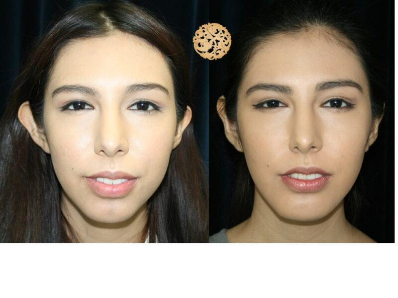 otoplasty-3-new