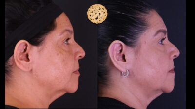 otoplasty-4-new