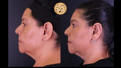 otoplasty-5-new