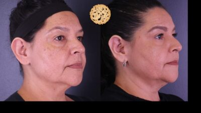 otoplasty-6-new