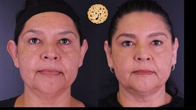 otoplasty-7-new