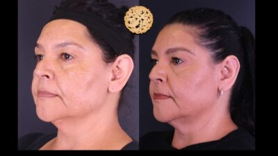 otoplasty-8-new