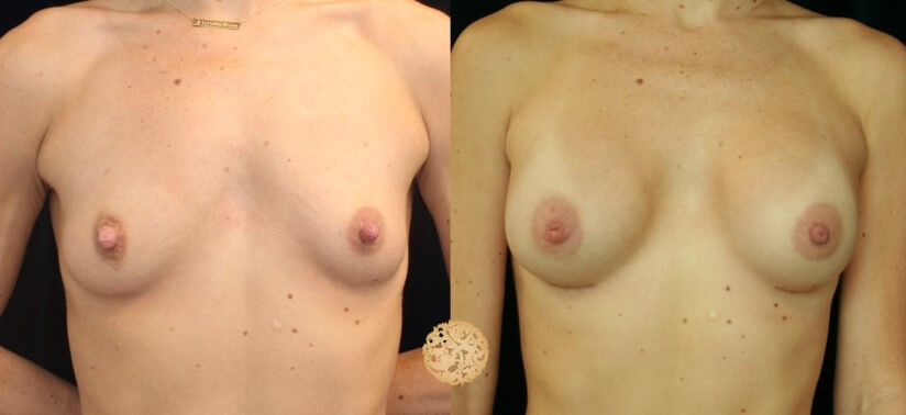 Nipple Reduction Gallery