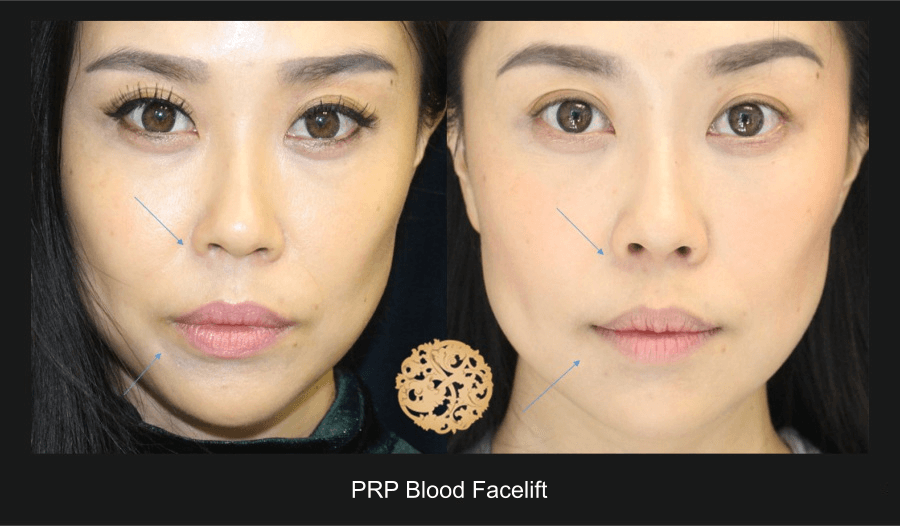 PRP Blood Facial Gallery