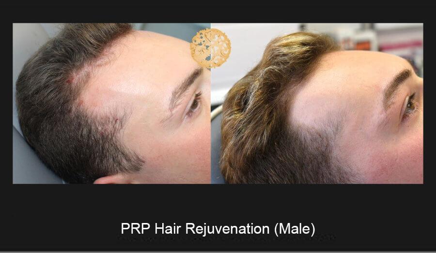 prp-hair-male-1