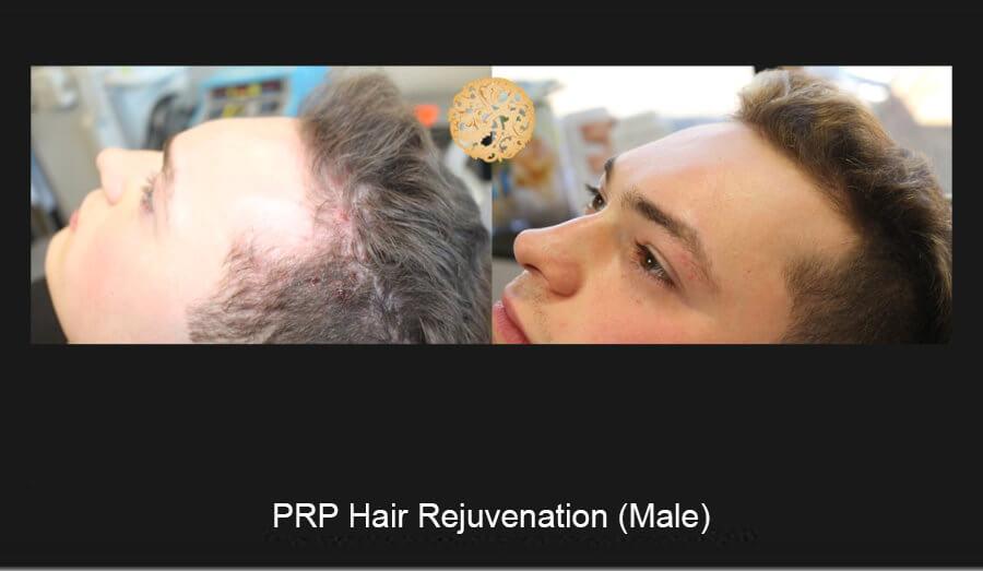 prp-hair-male-2