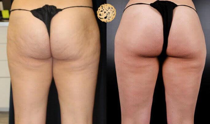 Cellulite Reduction
