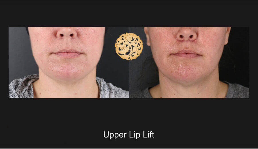 upper-lip-lift-a
