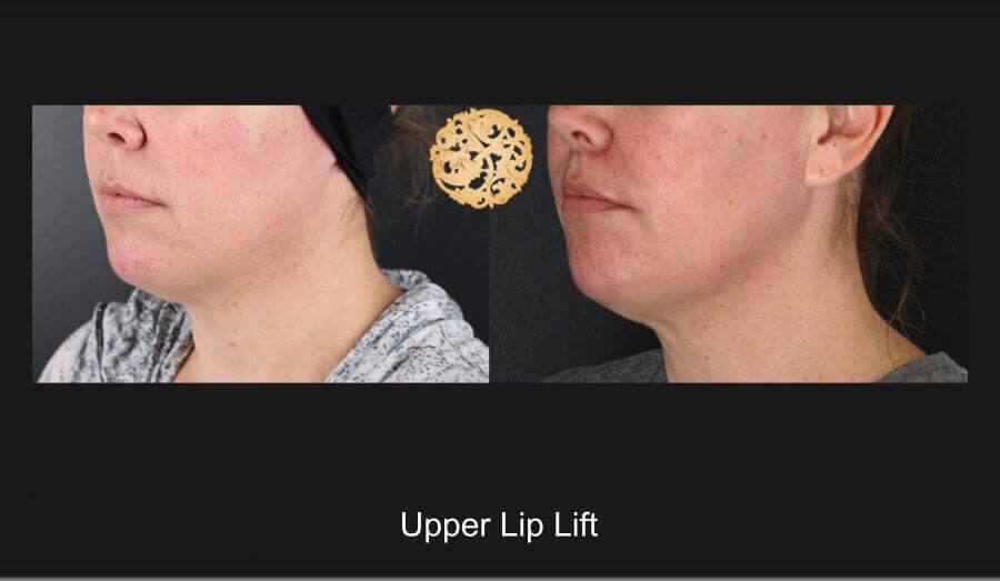 upper-lip-lift-b