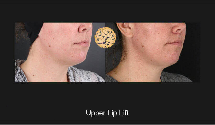 upper-lip-lift-c