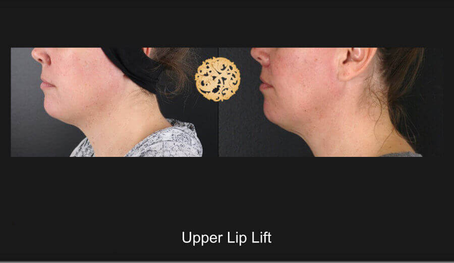 upper-lip-lift-d