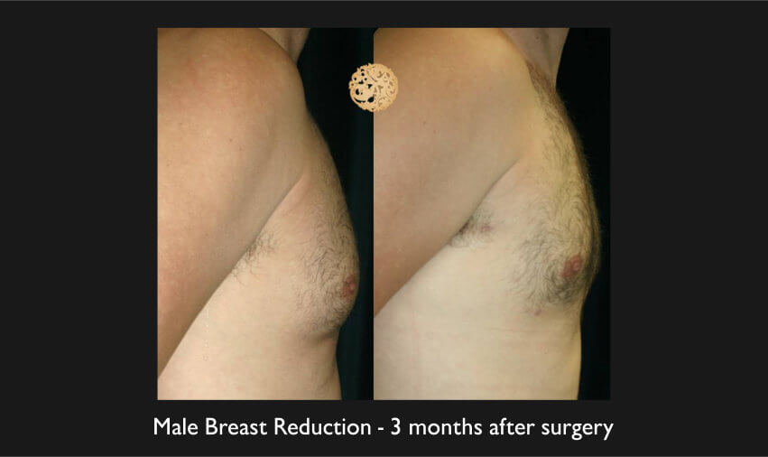 Plastic Surgery for Men - breast reduction