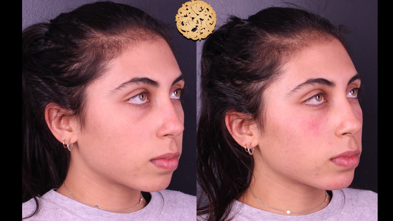 Tear Trough Injection – Before and After Gallery