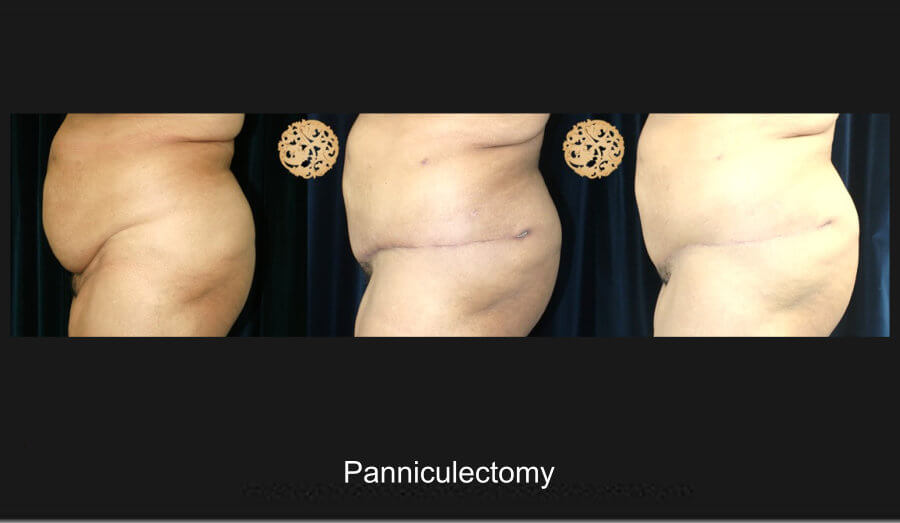 panniculectomy-1d