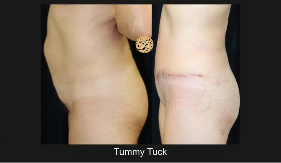 tum-tuck5