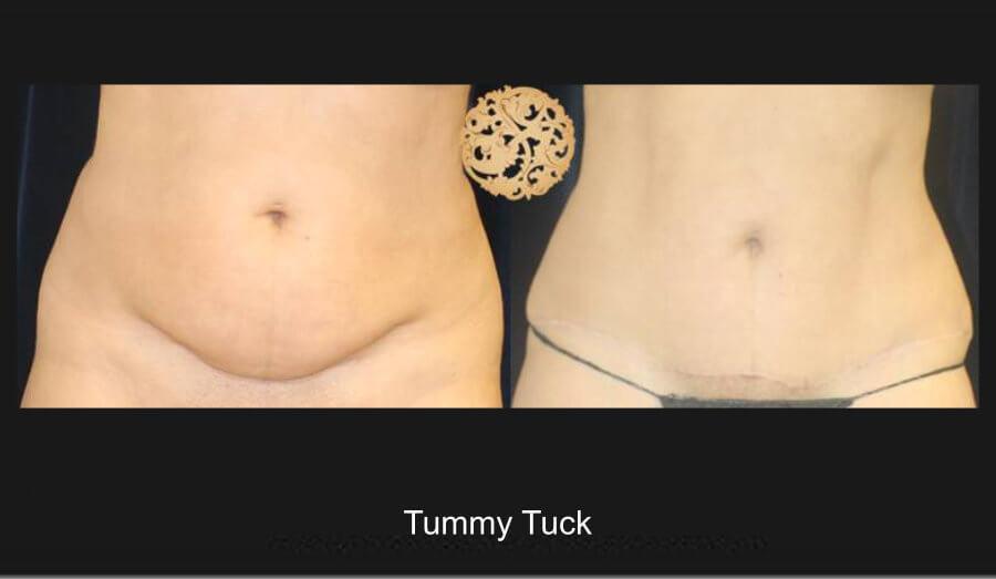 tummy-tuck-1