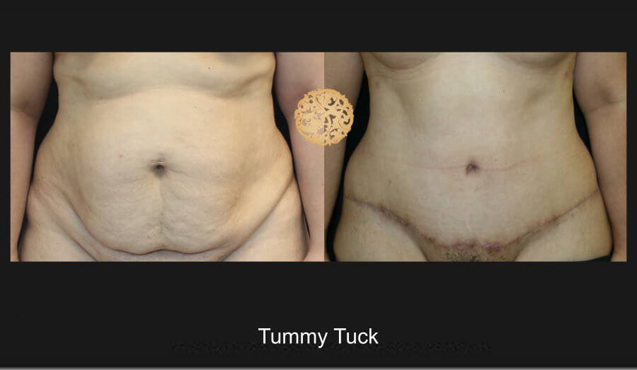 tummy-tuck-7a