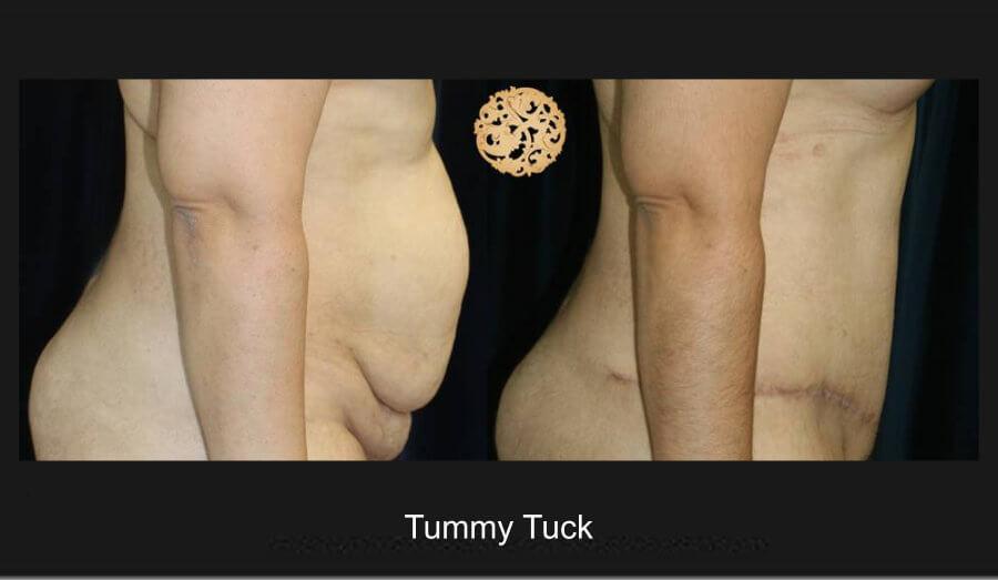 tummy-tuck-7b
