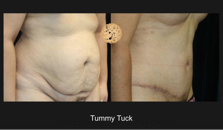 tummy-tuck-7c