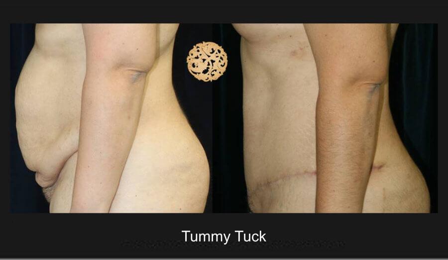 tummy-tuck-7d