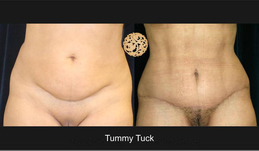 tummy-tuck1lg