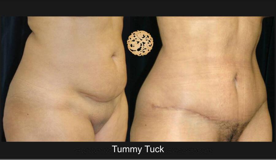 tummy-tuck2lg.jpg