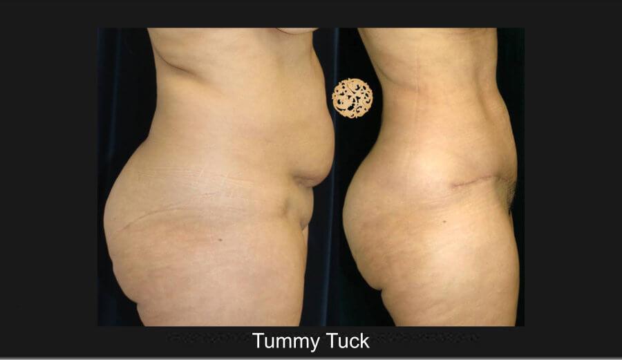 tummy-tuck3lg