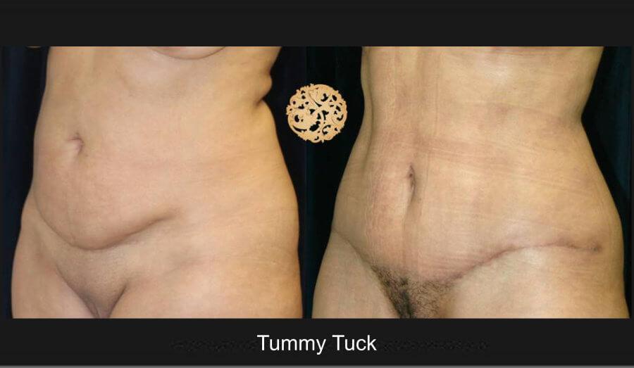 tummy-tuck4lg