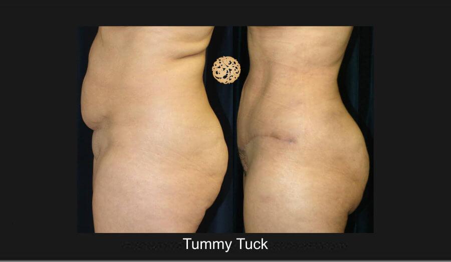tummy-tuck5lg