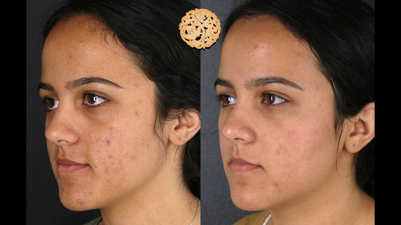 Dermal Infusion Gallery